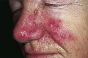Eczema and rosacea cure