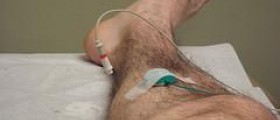 Electromyography - Nerve conduction studies