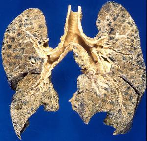 Emphysema causes and treatment