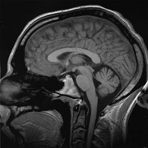 End stage of brain cancer