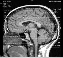 Epilepsy - How it affects the brain
