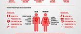 Esophageal cancer overview