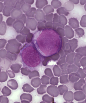 Facts about leukemia