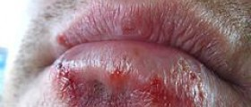 Facts about oral herpes