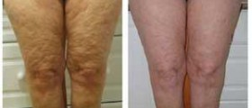 Fast home cellulite treatment