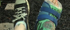 Lisfranc Fusion Surgery And Recovery