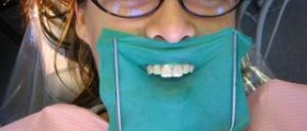 Get a beautiful winning smile with dental makeover