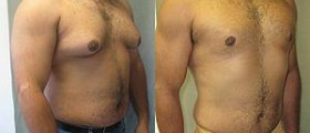 Gynecomastia surgery: Male breast reduction