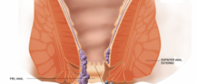 Hemorrhoid treatments overview