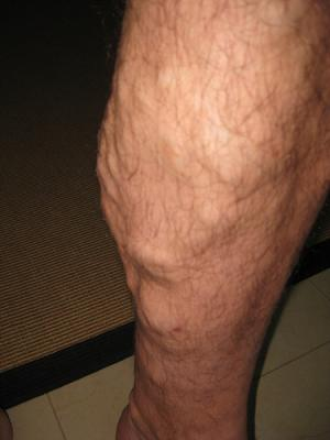 Herbs for varicose veins