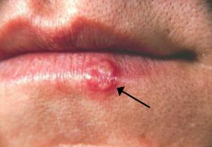 Herpes natural treatments are crucial for your health