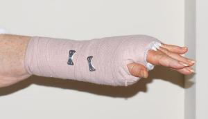 Home treatment for carpal tunnel