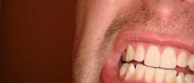 Home treatment for yellow teeth