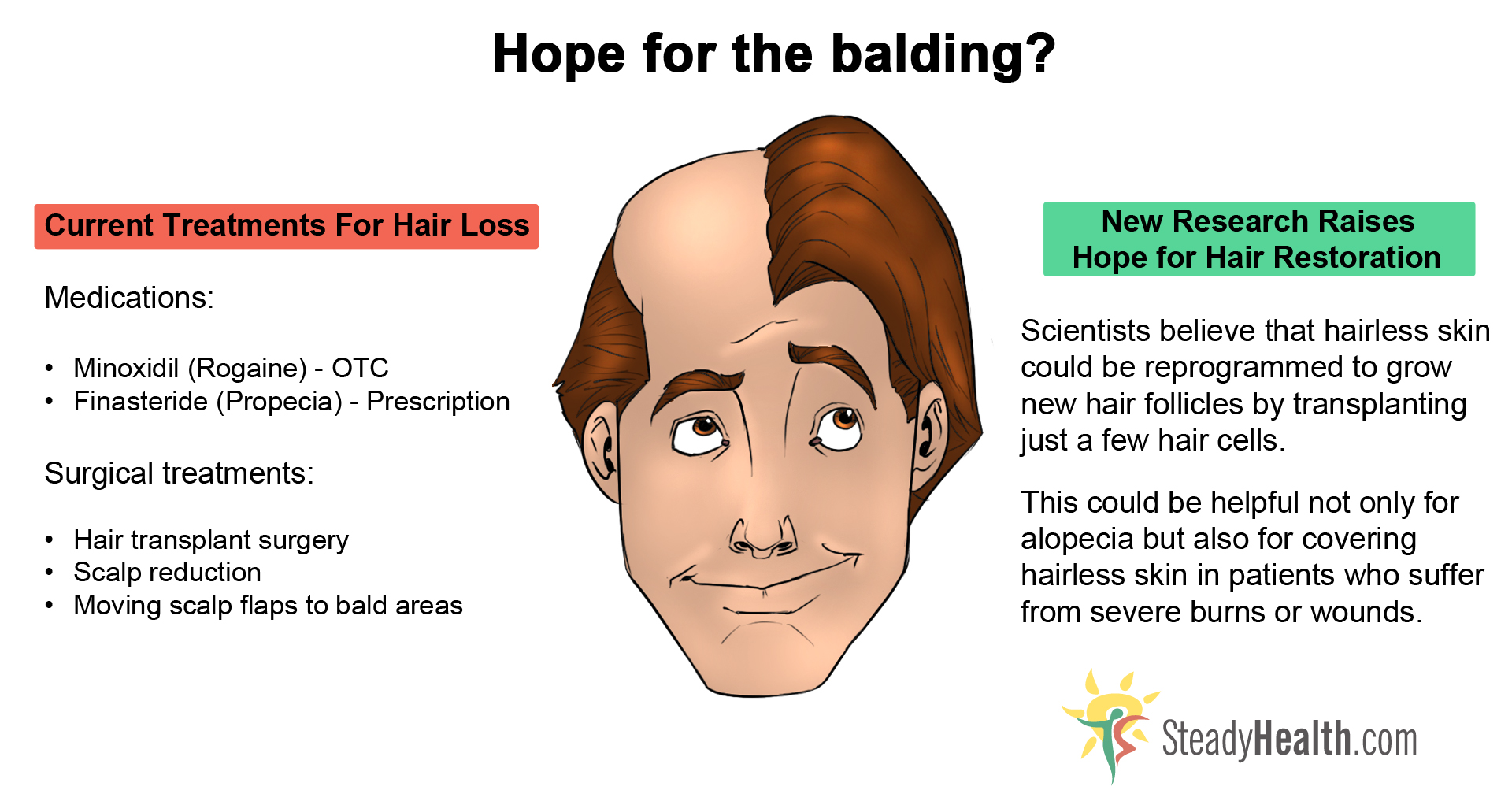 Early Male Pattern Baldness Signs Simple Inspiration