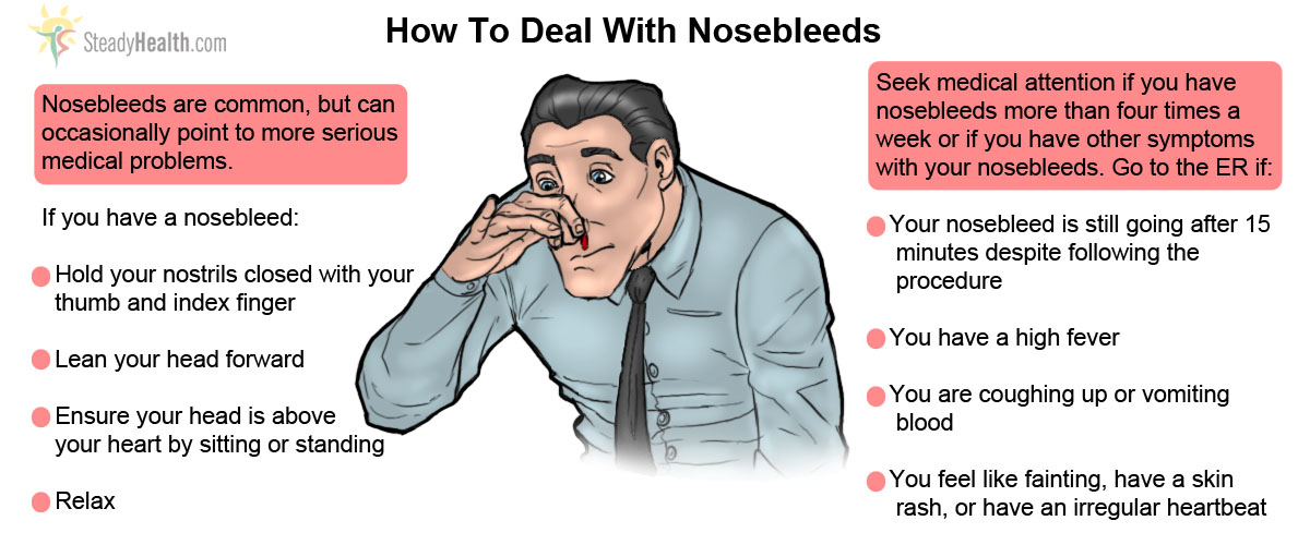 how-to-deal-with-nosebleed.jpg