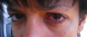 How long is pink eye contagious