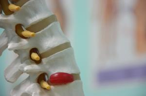 How to cure herniated disc pain