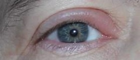 How to diagnose an eye infection?