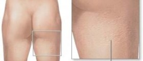 How to reduce cellulite on thighs
