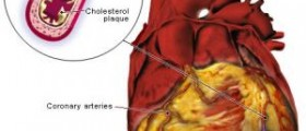 How to treat a myocardial infarction