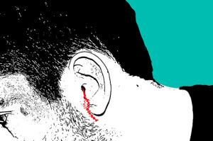 How to treat a ruptured eardrum