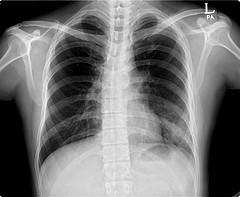 Idiopathic scoliosis - The most common form of the scoliosis