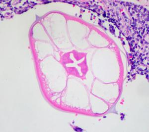 Information about pinworms in humans