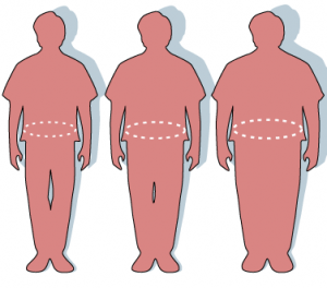Is bariatric surgery the answer to obesity?