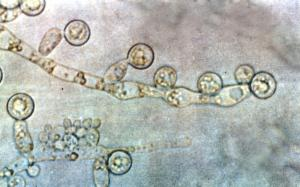 Is candida affecting your health ?