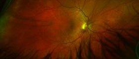 Is sickle cell retinopathy dangerous