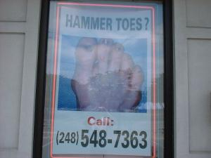 Is there a cure for Hammer toe