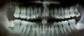 Is there a cure for Periodontitis