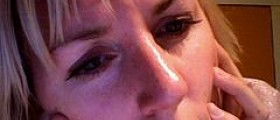 Laser therapy for rosacea