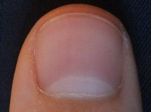 Nail Biting Can Lead To Fungal Infections