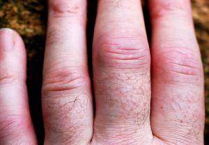 Natural arthritis treatment options