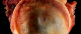 Ovarian cyst signs - symptoms of cysts on ovaries