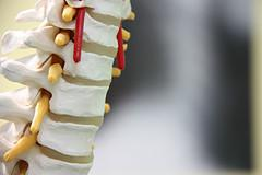 Pain management for spinal cord