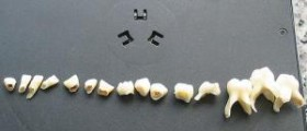 Painful teeth problem