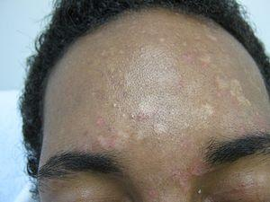 Pityriasis rosea treatment - Get skin relief now