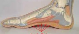 Plantar fasciitis surgery recovery time
