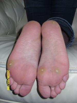 Plantar wart cure: what treatments are used to remove warts?
