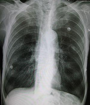 Prevention of emphysema