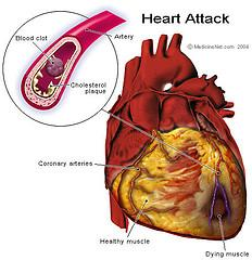 Prevention of heart attack