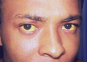 Prevention of jaundice