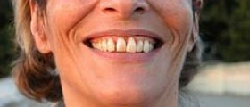 Prevention of periodontal disease