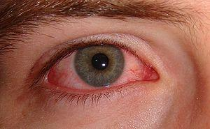 Prevention of pink eye