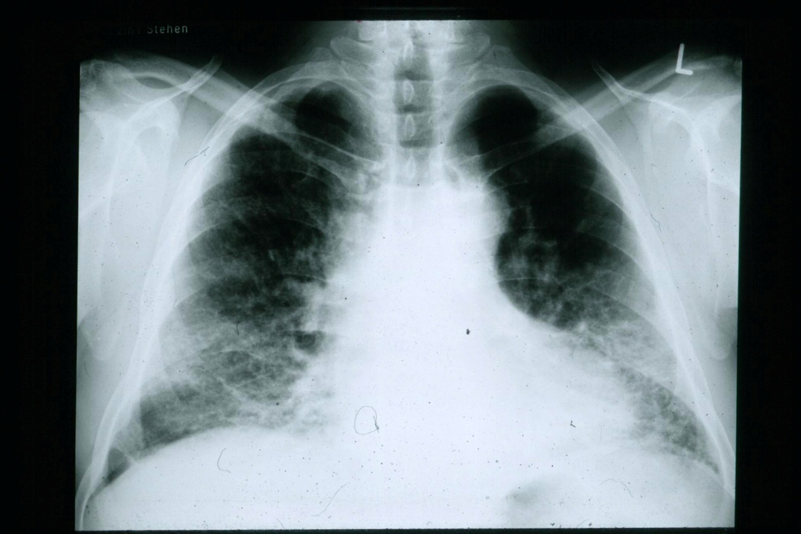 Pulmonary Fibrosis X Ray Four Lung Diseases You...