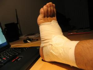 Recovery of broken ankle