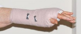Recovery time for carpal tunnel surgery