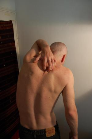 Red itchy scalp